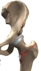 03-fratture collo del femore