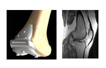 05-protesi di ginocchio