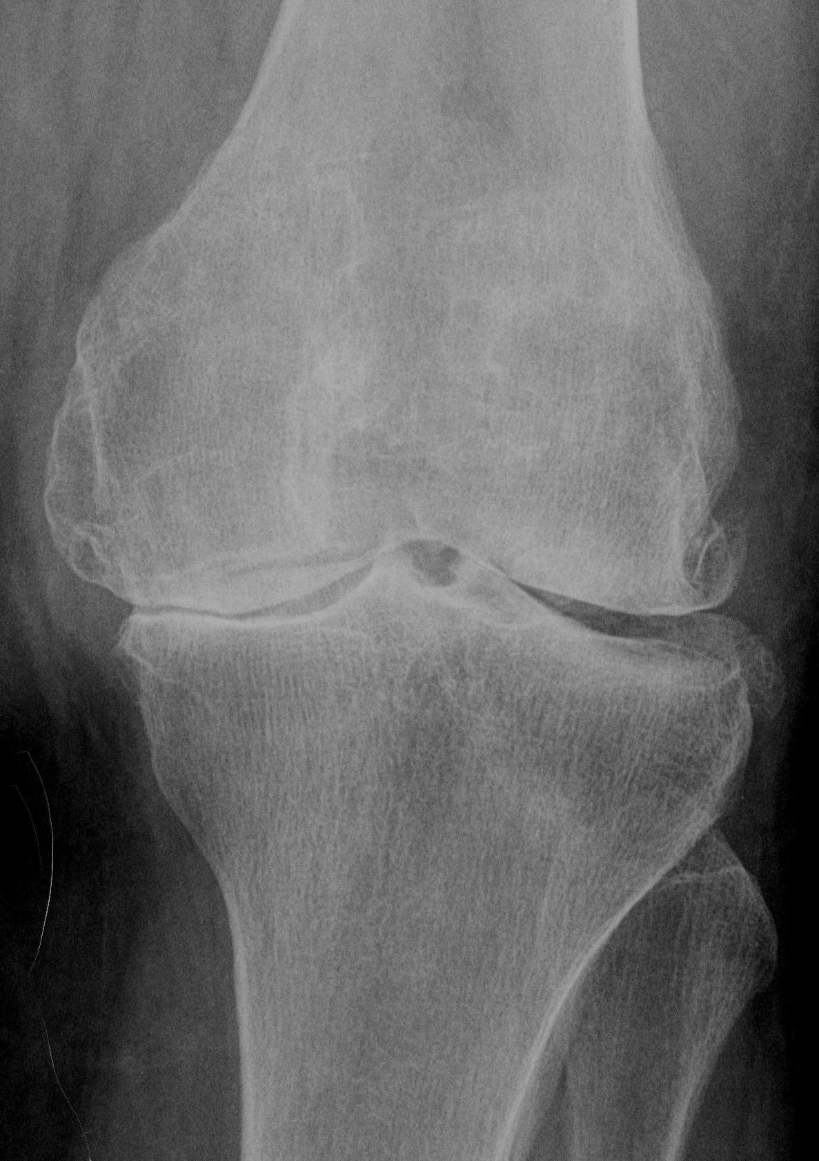 Artrosi del ginocchio - immagine x testo - 04