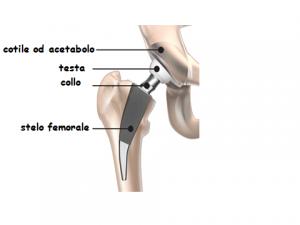 protesi anca 01